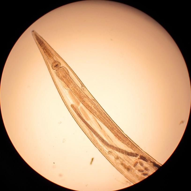 Pinworm under a microscope